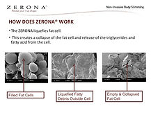 zerona-patient-consultation-book-6-728.j