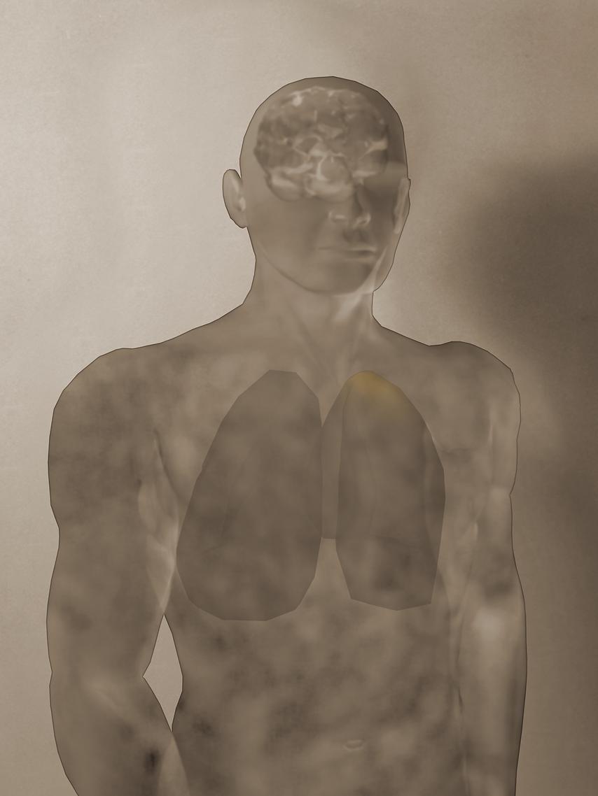 ARTN_PET_LungCancer.tif