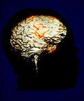 MRI.II.jpg