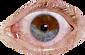 650x350_unusual_eye_conditions_slideshow