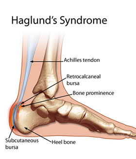 Haglunds Syndrome