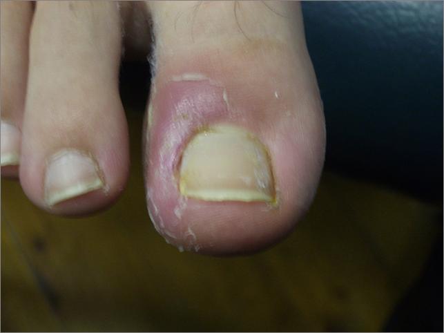 Infected Ingrown Toenail