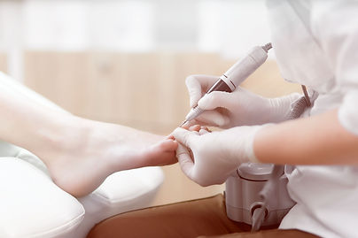 Close up of doctor in gloves making procedure for foot with special electric equipment fo