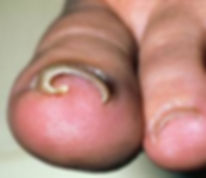 ingrown toenail concord foot clinic