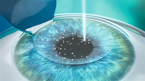 LASIK Evaluations & Post Ops.