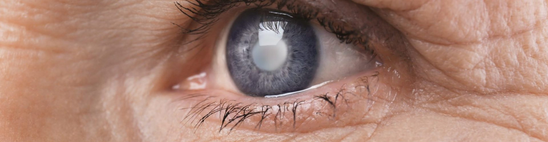 Cataract Evaluations & Post Ops.