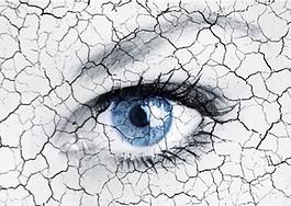 dry eye.png