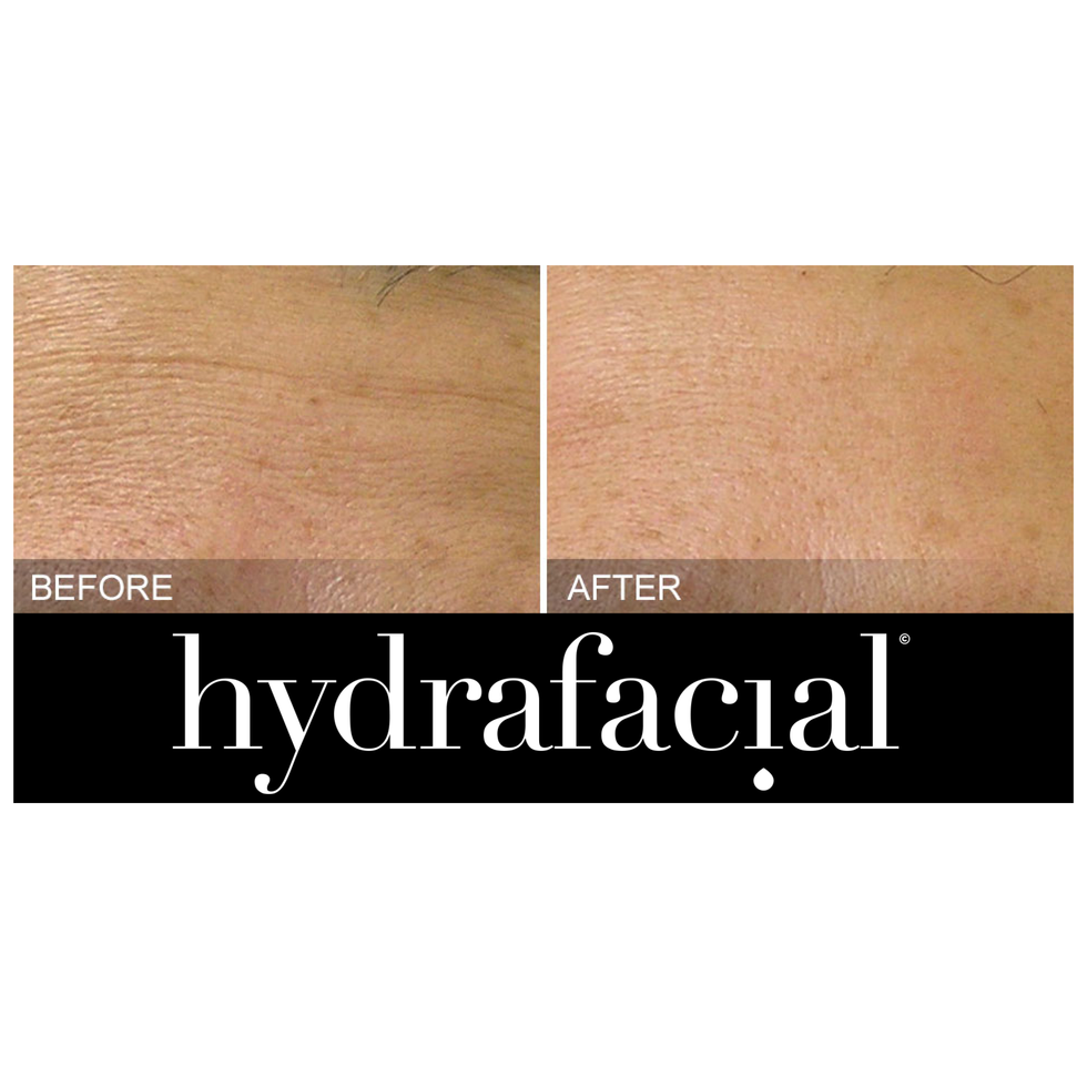 HydraFacial Fine lines before & after