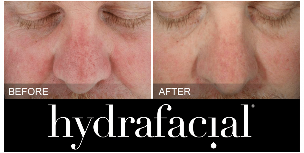 Redness/Inflammation before & after