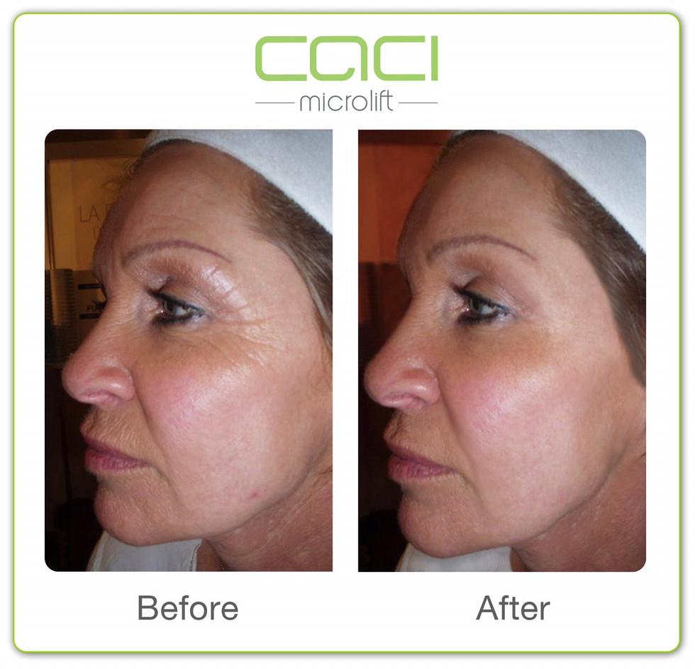 CACI Non-Surgical Facelifting