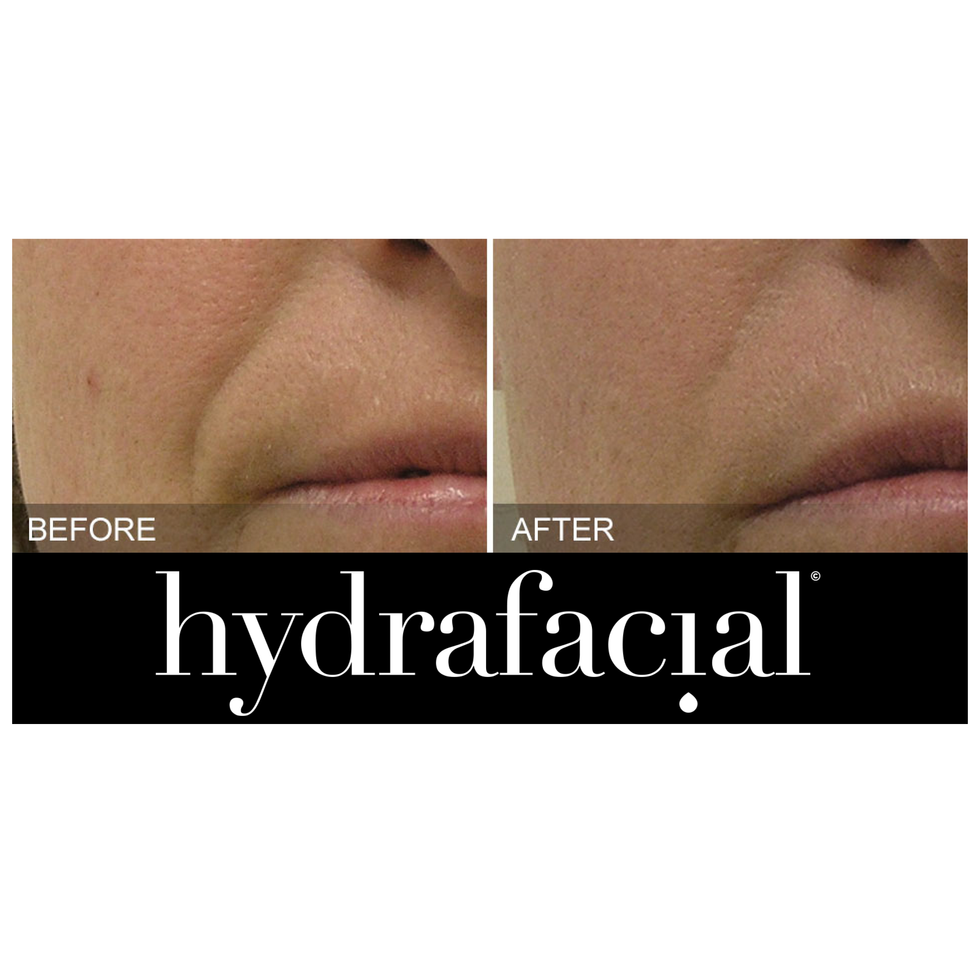 HydraFacial Nasal folds before & after