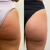 Soin cellulite