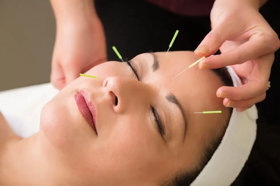 Initial Consultation + Acupuncture
