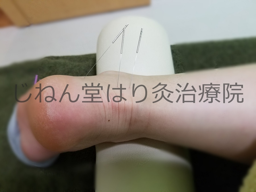右手首の痛み(TFCC損傷)
