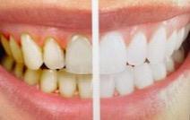 Tandblegning 35 min