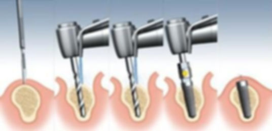 Dental implants, implant cost, implant procedure