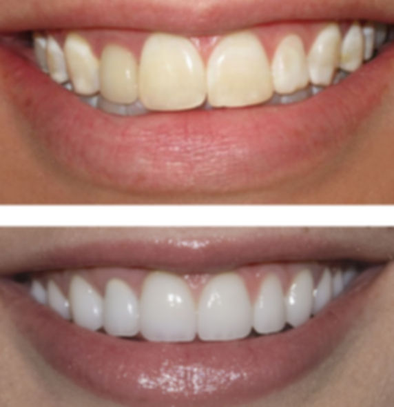 veneers, hollywood smile, cosmetic dentistry, smile, white smile