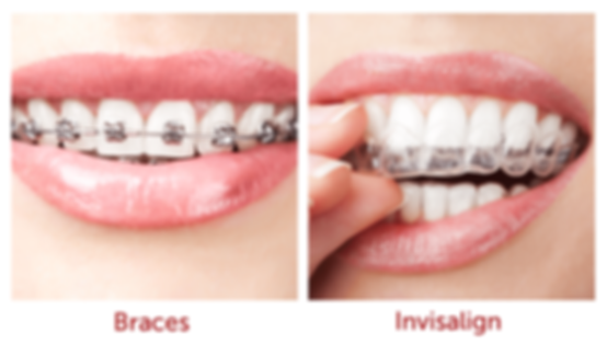 bracs, invisalign, invisble braces, metallic braces, removable braces, التقويم الشفاف, التقويم المتحرك