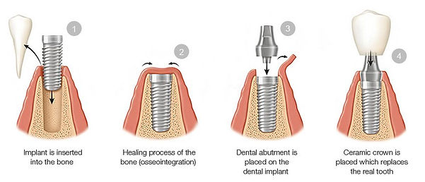 dental implant, implant cost, implant proceure