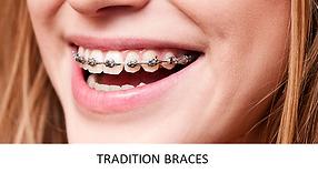 Metal Bracers.PNG