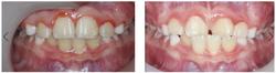 anterior cross bite correction