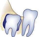 wisdom-teeth-wisdom-cysts.jpg