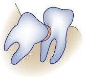 wisdom-teeth-wisdom-damage.jpg