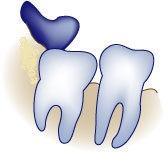 wisdom-teeth-wisdom-infection.jpg