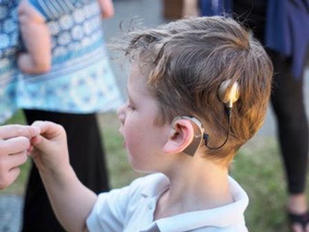 rafael sideways cochlear implant P629009