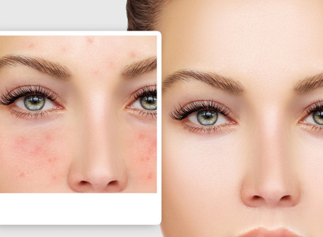 Couperose Skin   Behandeling