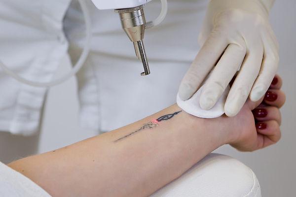 female-tattoo-removal-1-scaled_edited.jp