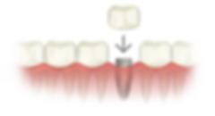 dental-implant-crown.png