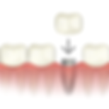 dental-implant-crown.png
