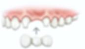 dentalBridge-orig.png