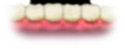 dental-gum-disease.png