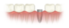 dental-implant.png