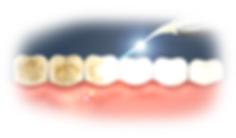 dental-laser.png