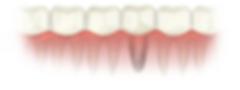dental-implant-complete.png
