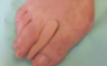 Anatomisch Angepasste Orthese