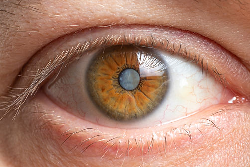 Macro photos of the human eye - cataract clouding of the lens, deterioration of vision. Ca