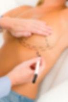 Augmentation seins aix- Implants seins Aix
