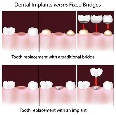 IMPLANTS VS BRIDGES