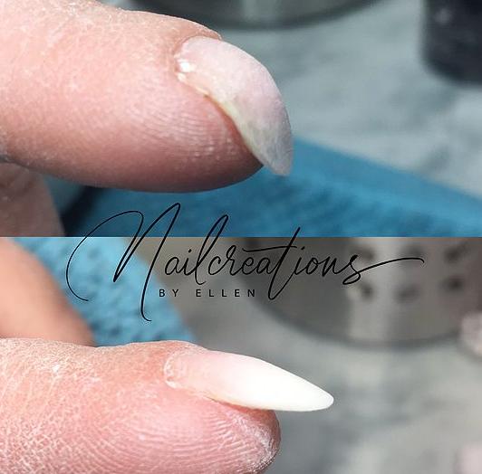 Correctie nagel