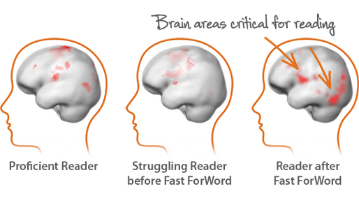 Brain Areas for Reading