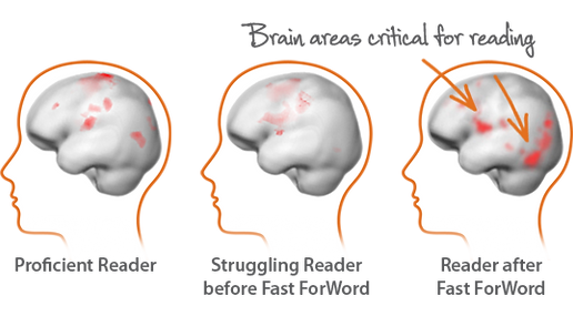 Brain areas critical for reading