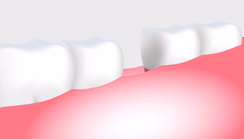 Odonty: Como é feito o Implante Odontológico