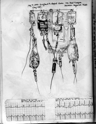 sketch book: IV pole Day 50. Boston,MA. July 12, 2013