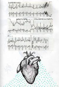 sketch book: EKG dripping heart. Boston, MA. September 14, 2013