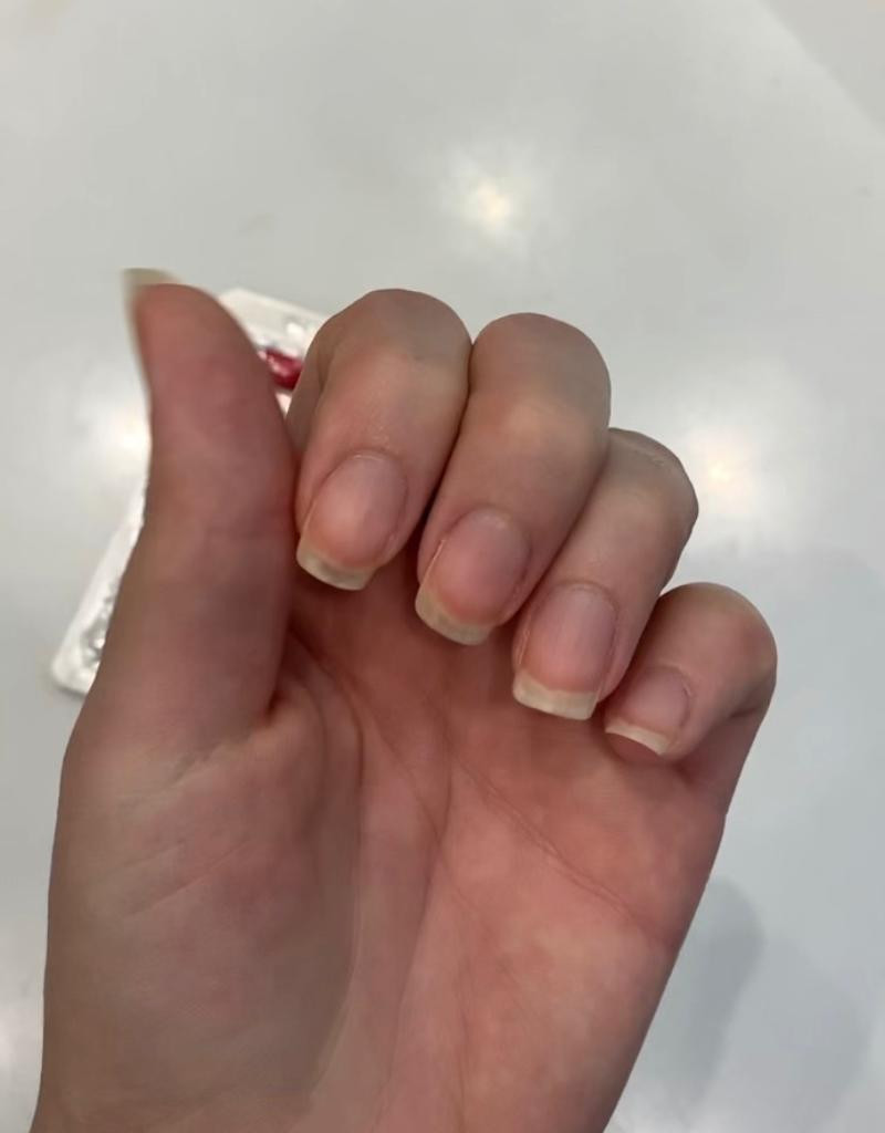 resultado tratamento onicut unhas fortes e longas