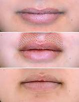 lip flip.jfif